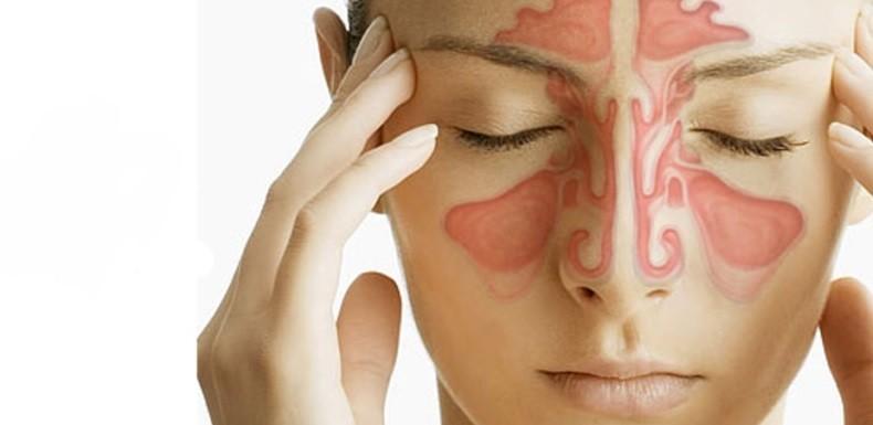 Metodos Naturales para Tratar la Sinusitis