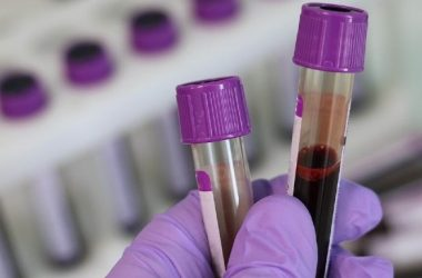 Todo sobre la hemofilia